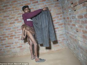 Chàng trai có 4 chân ở Ấn Độ