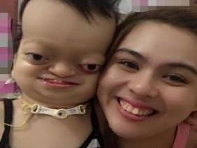 Dòng chia sẻ quặn thắt ruột gan của người mẹ dành cho con gái mắc bệnh lạ khiến cộng đồng mạng Việt chia sẻ rầm rộ