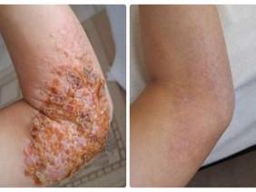 Tôi đã thoát khỏi sự giày vò 10 năm của bệnh eczema như thế nào