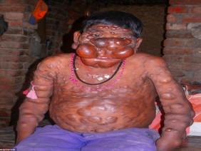 """Cậu bé có khuôn mặt """"ác quỷ"""" ở Ấn Độ"""