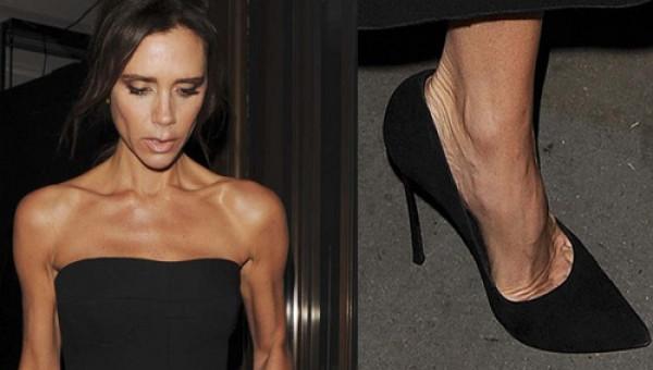 Nguy cơ hỏng cả chân vì đi giày cao gót nhiều mà không biết cách xử lý