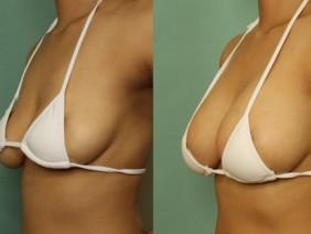 6 thói quen tai hại khiến ngực dễ bị chảy xệ