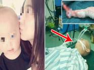 Mẹ cạo đầu, lột da của mình, cứu con trai 2 tuổi bị bỏng nặng vì ngã vào nồi nước sôi