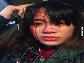 Hai thanh niên chơi gái không được liền quay sang đánh vỡ đầu người ta
