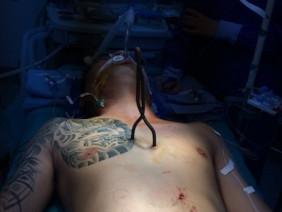 Hy hữu: Thanh sắt xiên cá đâm thủng 6 lỗ trên tim, vẫn sống