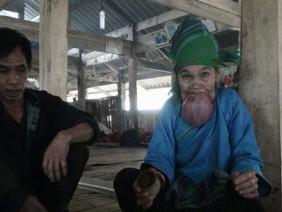 Xót xa nhìn cụ bà ở Hà Giang khổ sở vì chiếc lưỡi khổng lồ