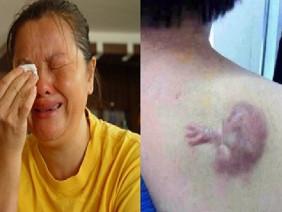 Nữ bác sĩ phá thai tạo ác nghiệp, hình thù kỳ dị xuất hiện trên thân