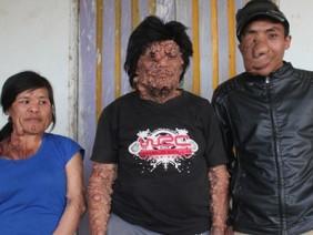 Những cơn đau tột cùng của 3 cha con mang căn bệnh