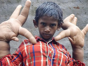 Cậu bé có bàn tay kỳ dị lớn nhất thế giới