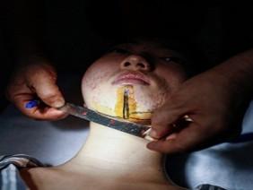 Bơm ngực đã là gì, đây mới là quá trình dao kéo đau đớn nhất mà 90% phụ nữ không dám làm